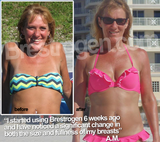 Brestrogen before-after-small