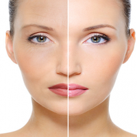 xyz-smart-collagen-before-after2